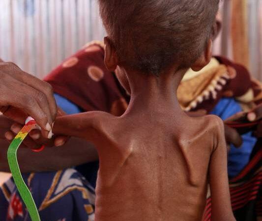 Criança angolana com desnutrição severa carece de ajuda urgente
